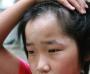 儿童白癜风该怎么诊断好呢