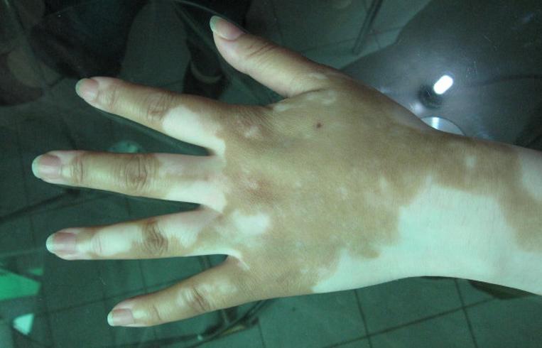 手部的白癜风怎么来护理