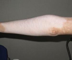 夏日手臂白癜风该如何护理