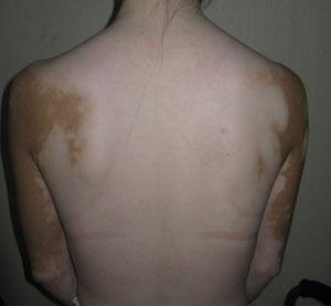 背部白癜风怎么治疗