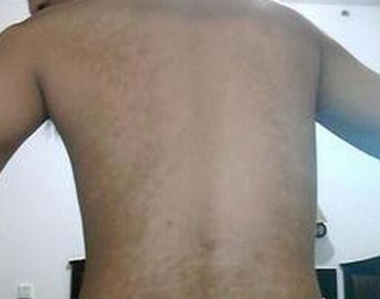 背部白癜风患者需要注意什么