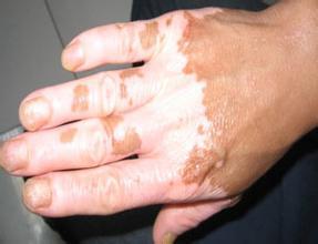手部的白癜风要怎么正确的护理呢