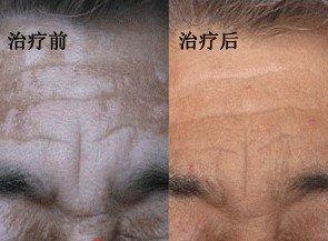 老年白癜风的症状表现有哪些