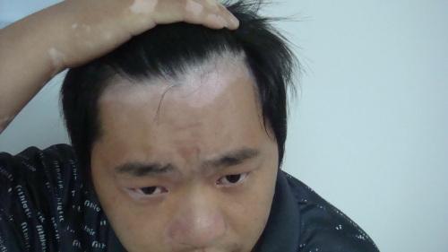 男性白癜风会有什么症状