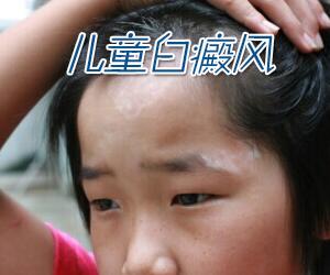 儿童患上白癜风是什么原因导致