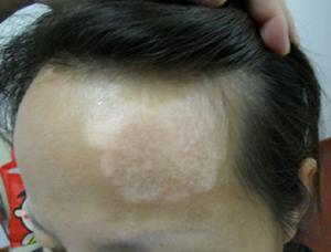 头部患上的白癜风要怎么治疗