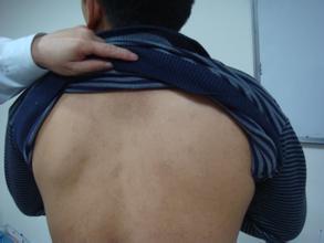 背部白癜风治疗要注意哪些事项