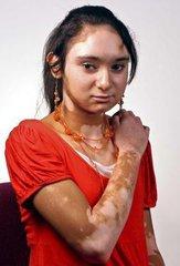 女性白癜风发病原因是什么