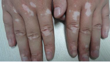 手部白癜风的引发病因有哪些
