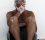 老年白癜风有哪些症状表现