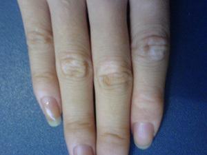 手部白癜风的常见危害有哪些