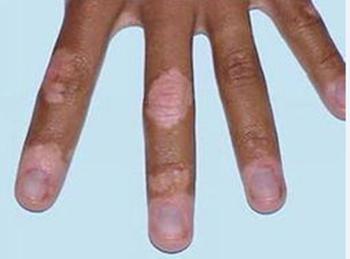 手部出现白癜风的原因有哪些