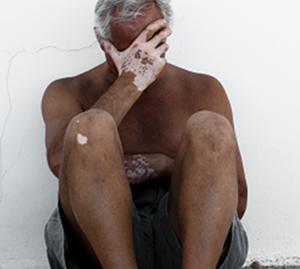 如何护理老年白癜风