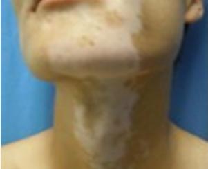 颈部白癜风怎么进行护理