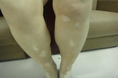 肢端型白癜风该怎么治疗